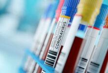 Photo de Covid-19: 419 nouveaux cas, 306 guérisons et 12 décès