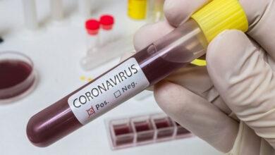 Photo of Coronavirus : 246 nouveaux cas, 216 guérisons et 4 décès
