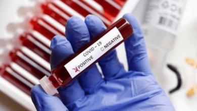 Photo de Coronavirus : la situation épidémiologique en Tunisie est extrêmement critique